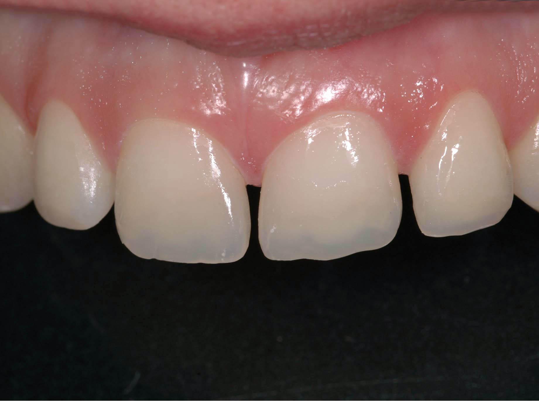 resine pour dent cassé